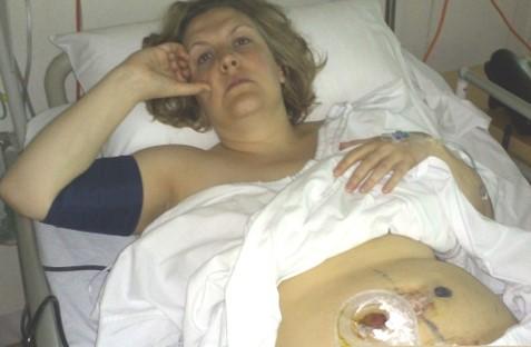 ileostomy bag birth trauma
